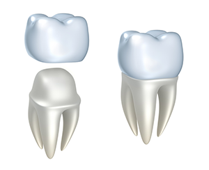 Dental Crowns in Greensboro NC